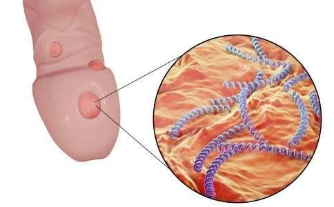 非 淋病 性 尿道 炎